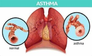 AstraZeneca new medicine for asthma: PT027 Phase-3 trials success.