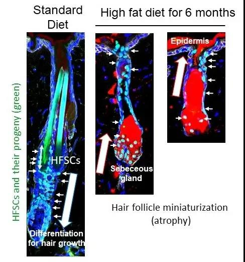How high-fat diets or obesity due to genetic factors can lead to hair loss?