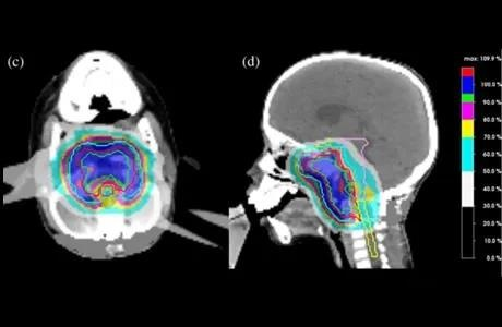 Proton therapy treat Skull base tumors by accurately blasting cancer cells