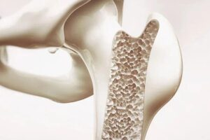 How osteoporosis affects the blood vessels of the heart?