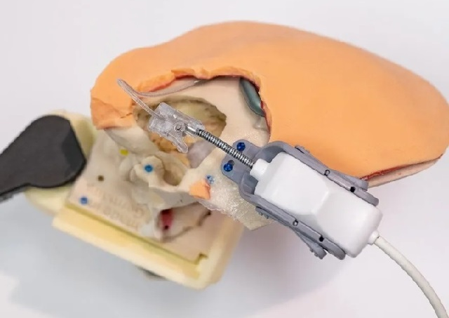 FDA approved the first surgical robot for cochlear implantation
